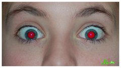 Thumbnail of Why Do My Eyes Glow Red in Photos?