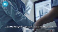 Thumbnail of First Human Head Transplant