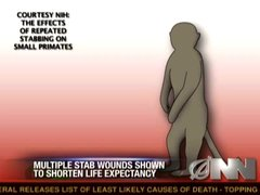 Thumbnail of Study: Multiple stab wounds may be harmful