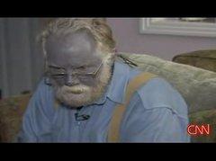 Thumbnail of Man turns dark blue