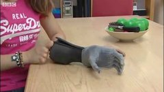 Thumbnail of Girl gets bionic fingers